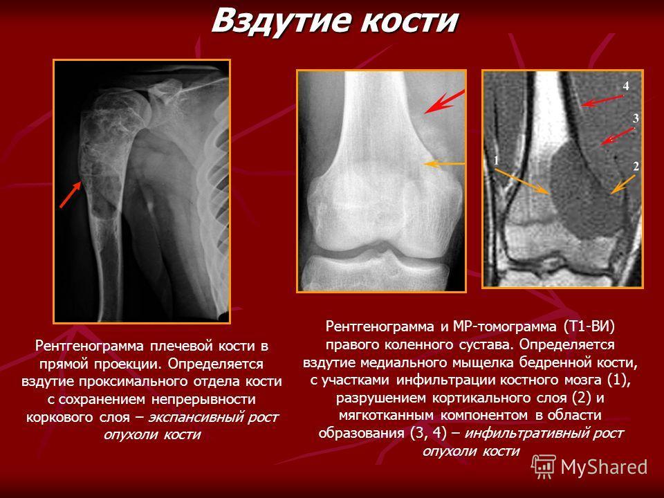 Рентгенограмма плечевой кости в прямой проекции. Определяется вздутие проксимального отдела кости с сохранением непрерывности коркового слоя – экспансивный рост опухоли кости Вздутие кости Рентгенограмма и МР-томограмма (Т1-ВИ) правого коленного суст