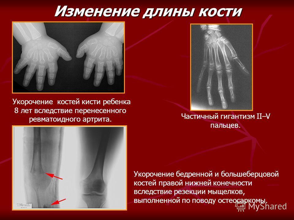 Частичный гигантизм II–V пальцев. Укорочение костей кисти ребенка 8 лет вследствие перенесенного ревматоидного артрита. Изменение длины кости Укорочение бедренной и большеберцовой костей правой нижней конечности вследствие резекции мыщелков, выполнен