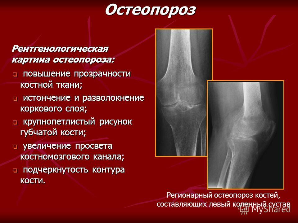 повышение прозрачности костной ткани; повышение прозрачности костной ткани; истончение и разволокнение коркового слоя; истончение и разволокнение коркового слоя; крупнопетлистый рисунок губчатой кости; крупнопетлистый рисунок губчатой кости; увеличен