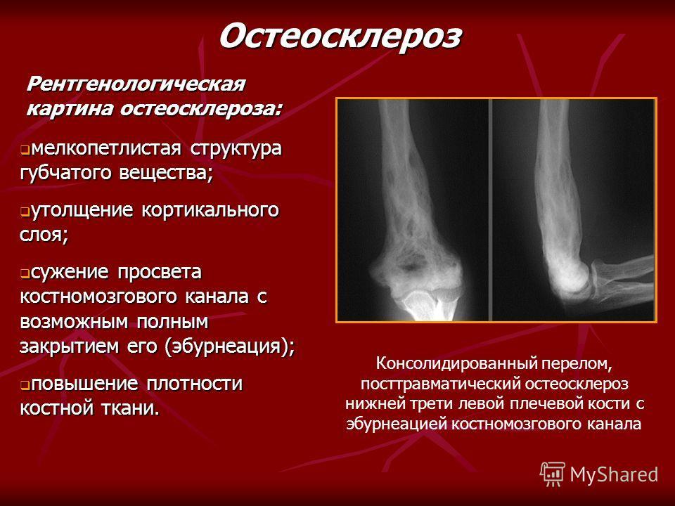Рентгенологическая картина остеосклероза: мелкопетлистая структура губчатого вещества; мелкопетлистая структура губчатого вещества; утолщение кортикального слоя; утолщение кортикального слоя; сужение просвета костномозгового канала с возможным полным