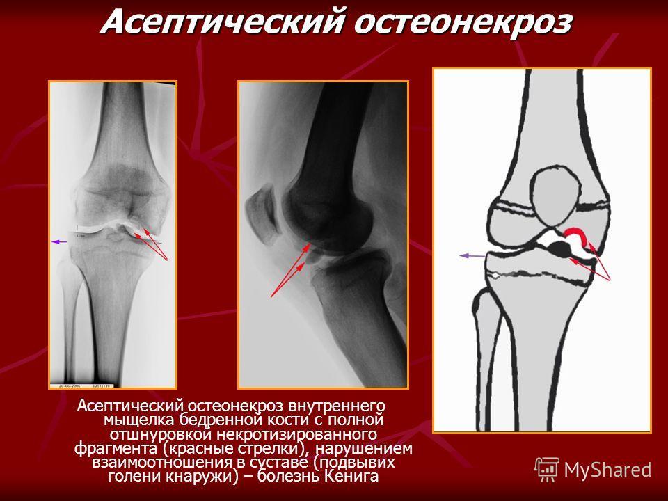 Асептический остеонекроз Асептический остеонекроз внутреннего мыщелка бедренной кости с полной отшнуровкой некротизированного фрагмента (красные стрелки), нарушением взаимоотношения в суставе (подвывих голени кнаружи) – болезнь Кенига