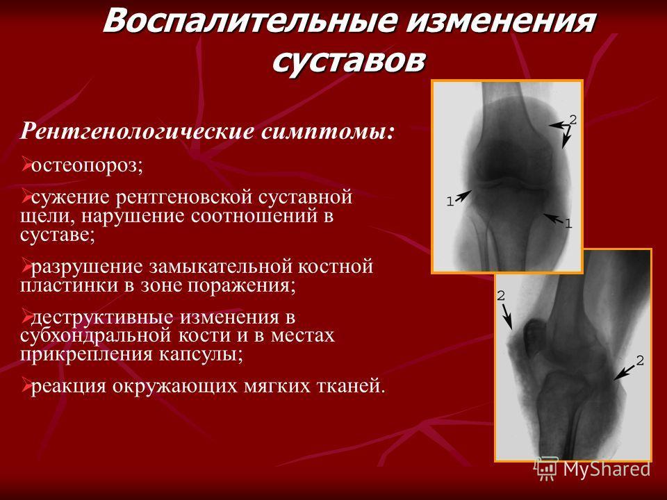 Рентгенологические симптомы: остеопороз; сужение рентгеновской суставной щели, нарушение соотношений в суставе; разрушение замыкательной костной пластинки в зоне поражения; деструктивные изменения в субхондральной кости и в местах прикрепления капсул