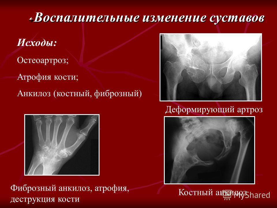 Воспалительные изменение суставов Исходы: Остеоартроз; Атрофия кости; Анкилоз (костный, фиброзный) Деформирующий артроз Костный анкилоз Фиброзный анкилоз, атрофия, деструкция кости