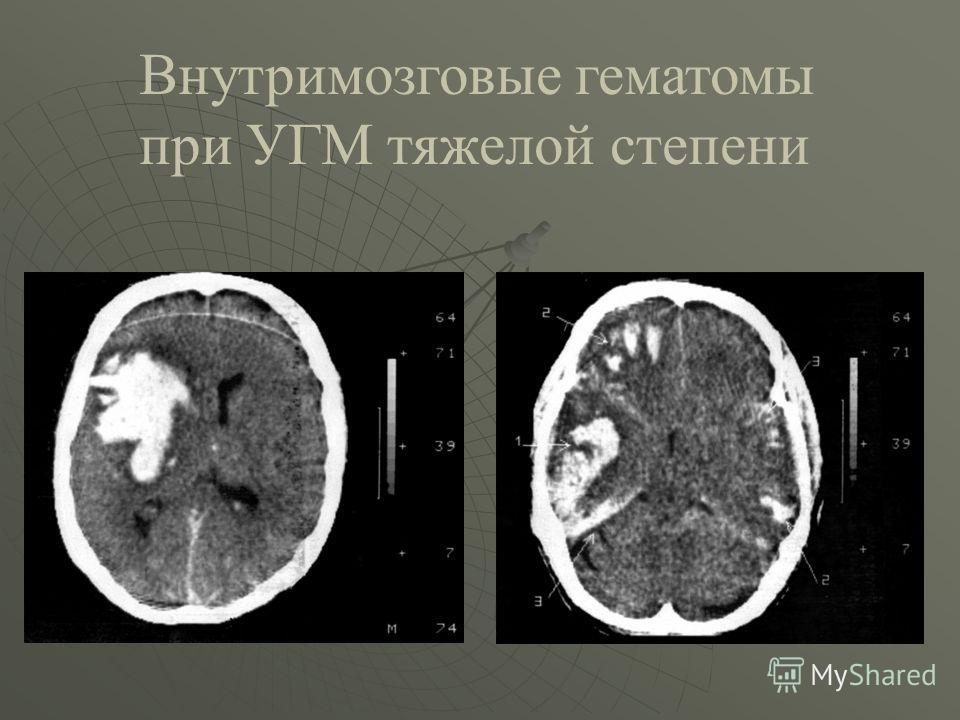 Внутримозговые гематомы при УГМ тяжелой степени