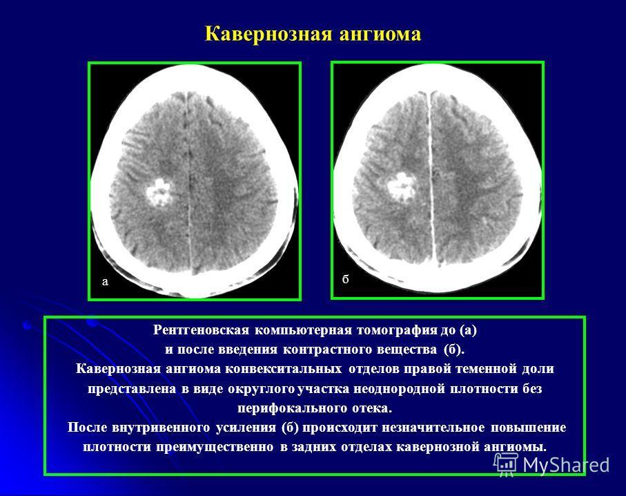 Рентгеновская компьютерная томография до (а) и после введения контрастного вещества (б). Кавернозная ангиома конвекситальных отделов правой теменной доли представлена в виде округлого участка неоднородной плотности без перифокального отека. После вну