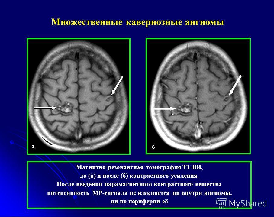 а б Магнитно-резонансная томография Т1-ВИ, до (а) и после (б) контрастного усиления. После введения парамагнитного контрастного вещества интенсивность МР-сигнала не изменяется ни внутри ангиомы, ни по периферии её Множественные кавернозные ангиомы