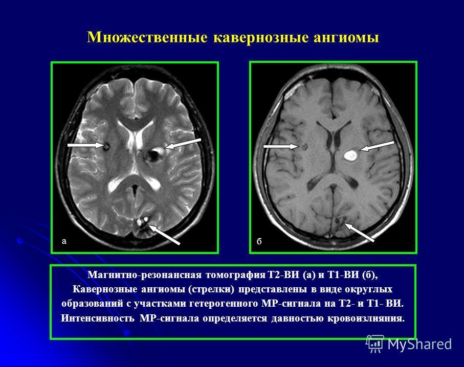 а б Магнитно-резонансная томография Т2-ВИ (а) и Т1-ВИ (б), Кавернозные ангиомы (стрелки) представлены в виде округлых образований с участками гетерогенного МР-сигнала на Т2- и Т1- ВИ. Интенсивность МР-сигнала определяется давностью кровоизлияния. Мно
