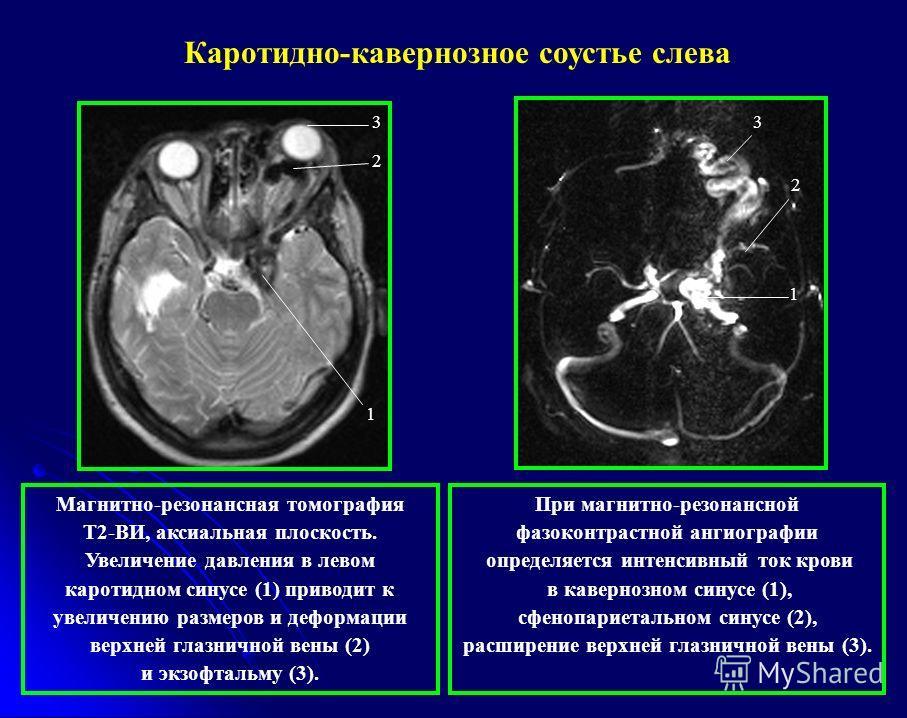 1 2 3 При магнитно-резонансной фазоконтрастной ангиографии определяется интенсивный ток крови в кавернозном синусе (1), сфенопариетальном синусе (2), расширение верхней глазничной вены (3). 1 2 3 Магнитно-резонансная томография Т2-ВИ, аксиальная плос