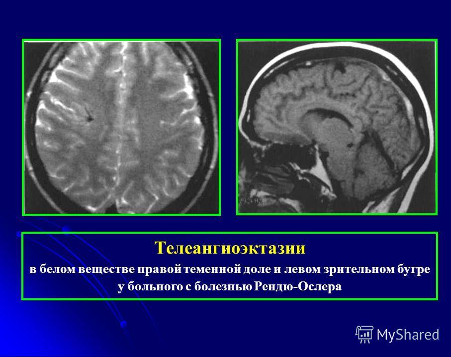 Телеангиоэктазии в белом веществе правой теменной доле и левом зрительном бугре у больного с болезнью Рендю-Ослера