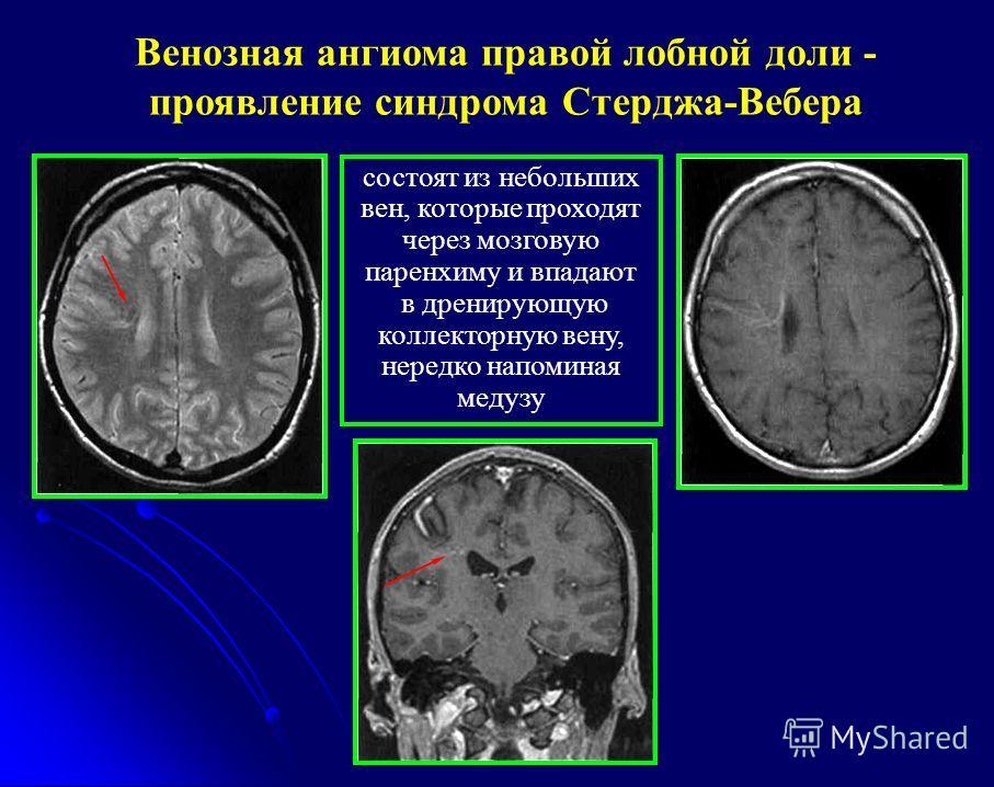 Венозная ангиома правой лобной доли - проявление синдрома Стерджа-Вебера состоят из небольших вен, которые проходят через мозговую паренхиму и впадают в дренирующую коллекторную вену, нередко напоминая медузу