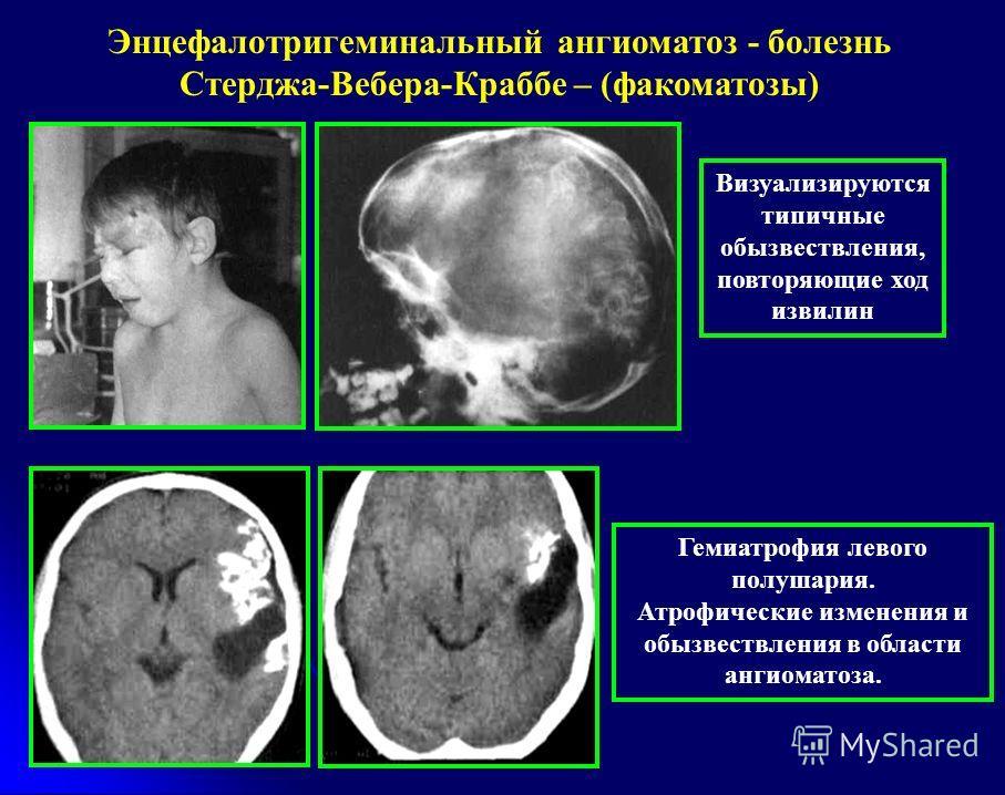 Энцефалотригеминальный ангиоматоз - болезнь Стерджа-Вебера-Краббе – (факоматозы) Гемиатрофия левого полушария. Атрофические изменения и обызвествления в области ангиоматоза. Визуализируются типичные обызвествления, повторяющие ход извилин