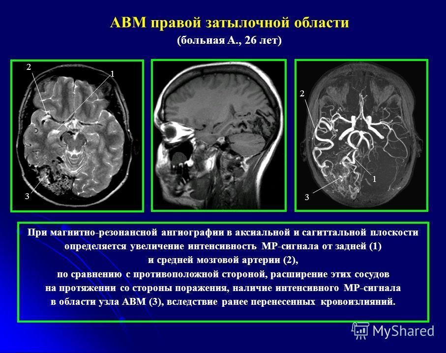 1 2 3 При магнитно-резонансной ангиографии в аксиальной и сагиттальной плоскости определяется увеличение интенсивность МР-сигнала от задней (1) и средней мозговой артерии (2), по сравнению с противоположной стороной, расширение этих сосудов на протяж