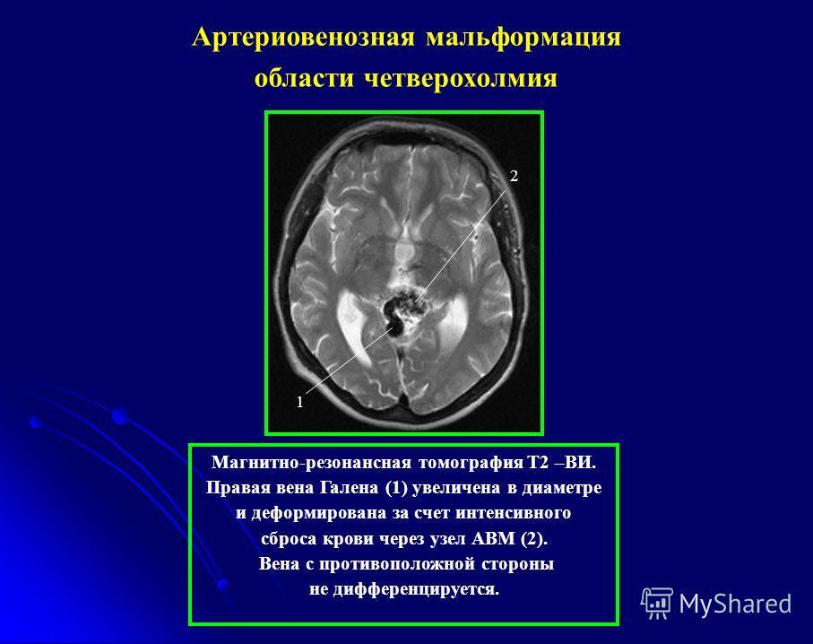 2 1 Магнитно-резонансная томография Т2 –ВИ. Правая вена Галена (1) увеличена в диаметре и деформирована за счет интенсивного сброса крови через узел АВМ (2). Вена с противоположной стороны не дифференцируется. Артериовенозная мальформация области чет