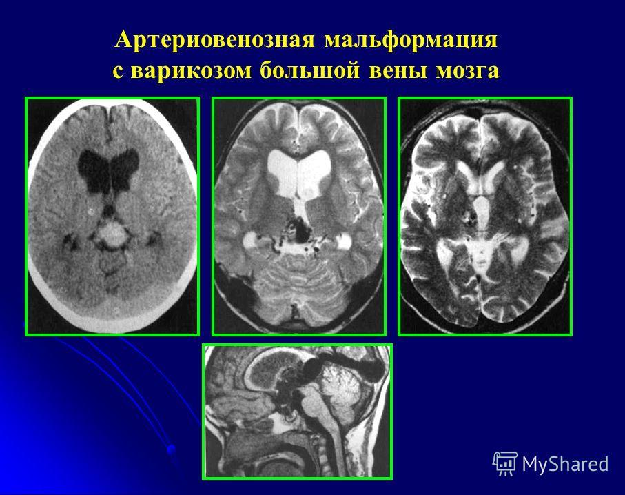 Артериовенозная мальформация с варикозом большой вены мозга