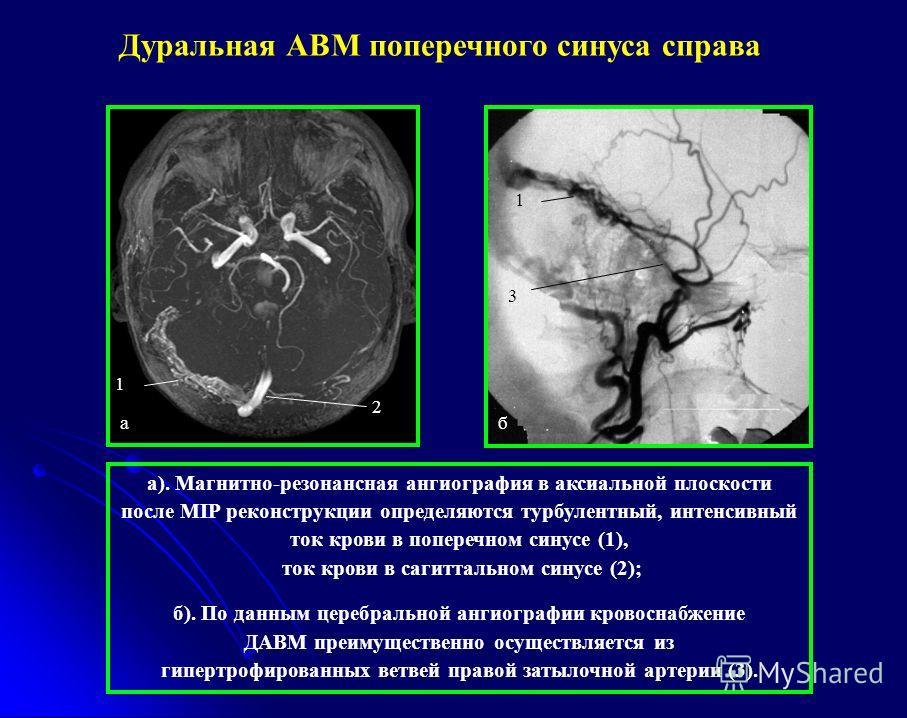 2 1 а 3 б 1 а). Магнитно-резонансная ангиография в аксиальной плоскости после MIP реконструкции определяются турбулентный, интенсивный ток крови в поперечном синусе (1), ток крови в сагиттальном синусе (2); б). По данным церебральной ангиографии кров