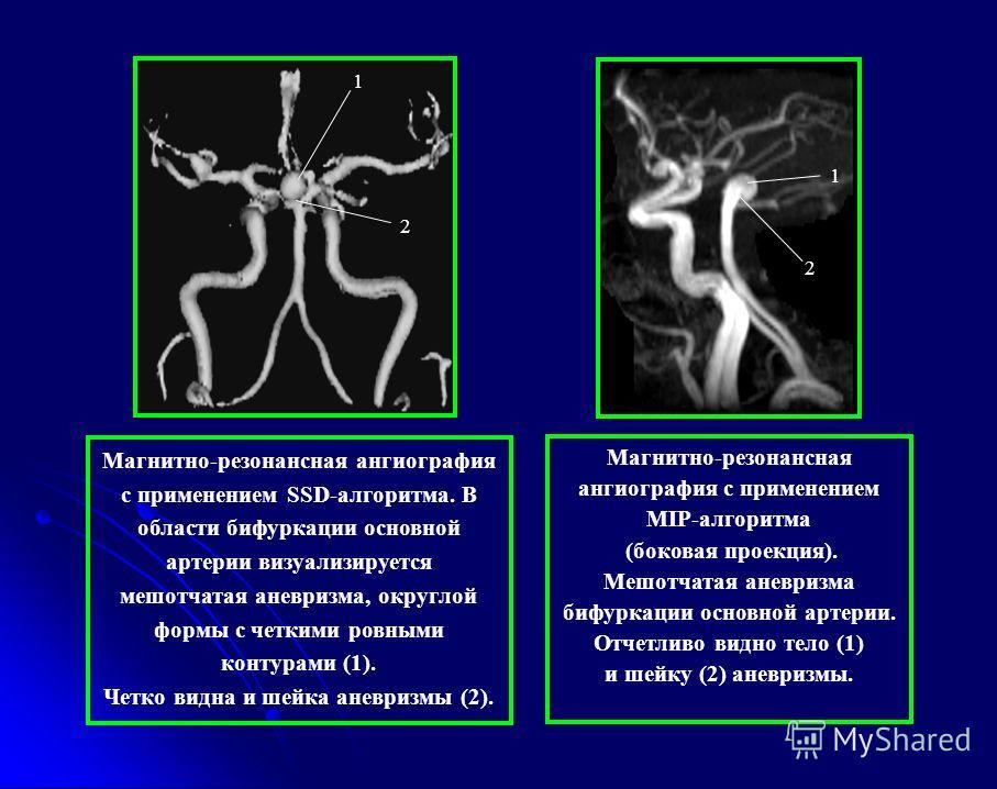 1 2 Магнитно-резонансная ангиография с применением SSD-алгоритма. В области бифуркации основной артерии визуализируется мешотчатая аневризма, округлой формы с четкими ровными контурами (1). Четко видна и шейка аневризмы (2). 1 2 Магнитно-резонансная