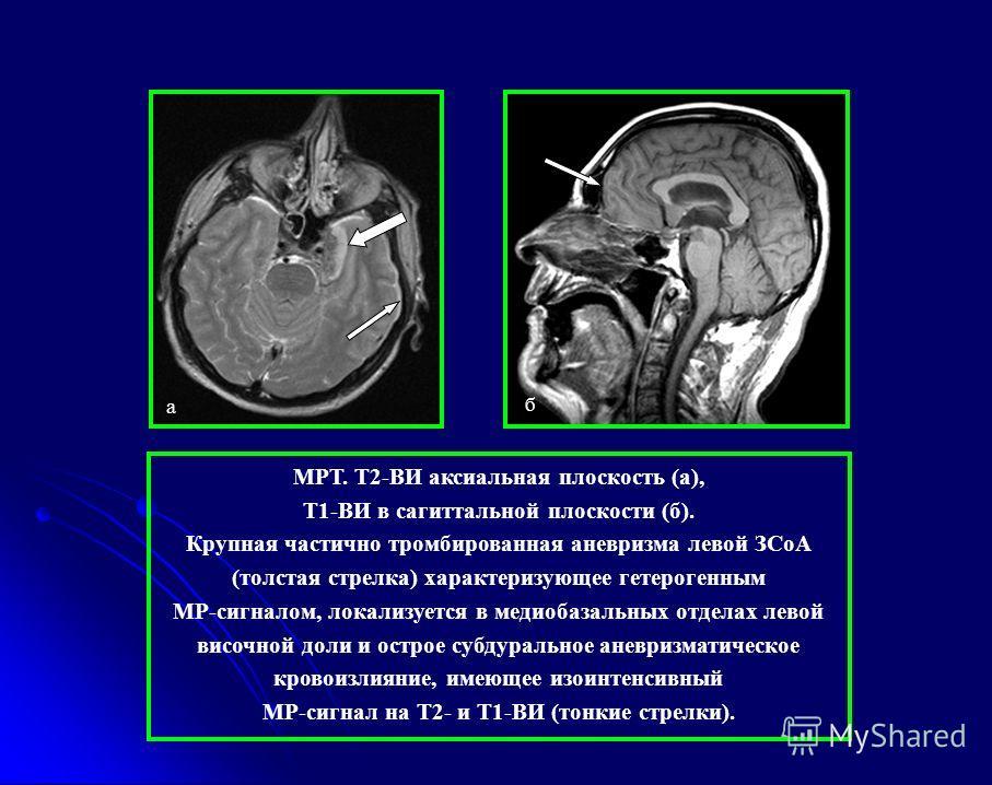 а б МРТ. Т2-ВИ аксиальная плоскость (а), Т1-ВИ в сагиттальной плоскости (б). Крупная частично тромбированная аневризма левой ЗСоА (толстая стрелка) характеризующее гетерогенным МР-сигналом, локализуется в медиобазальных отделах левой височной доли и