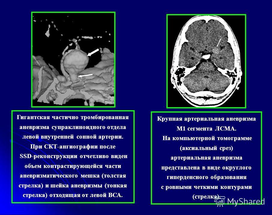 Крупная артериальная аневризма М1 сегмента ЛСМА. На компьютерной томограмме (аксиальный срез) артериальная аневризма представлена в виде округлого гиперденсного образования с ровными четкими контурами (стрелка). Гигантская частично тромбированная ане