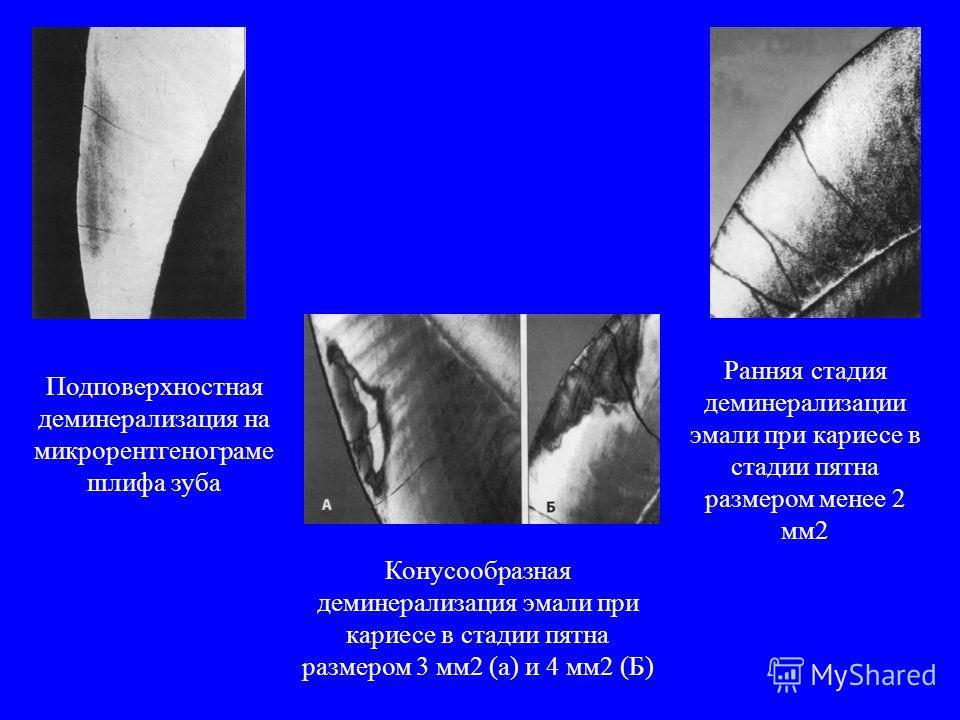 Подповерхностная деминерализация на микрорентгенограмме шлифа зуба Рананая стадия деминерализации эмали при кариесе в стадии пятна размером менее 2 мм 2 Конусообразная деминерализация эмали при кариесе в стадии пятна размером 3 мм 2 (а) и 4 мм 2 (Б)