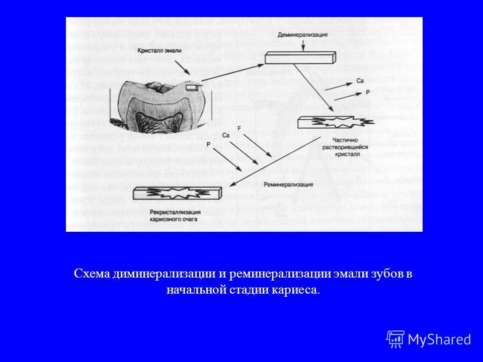 Схема диминерализации и реминерализации эмали зубов в начальной стадии кариеса.