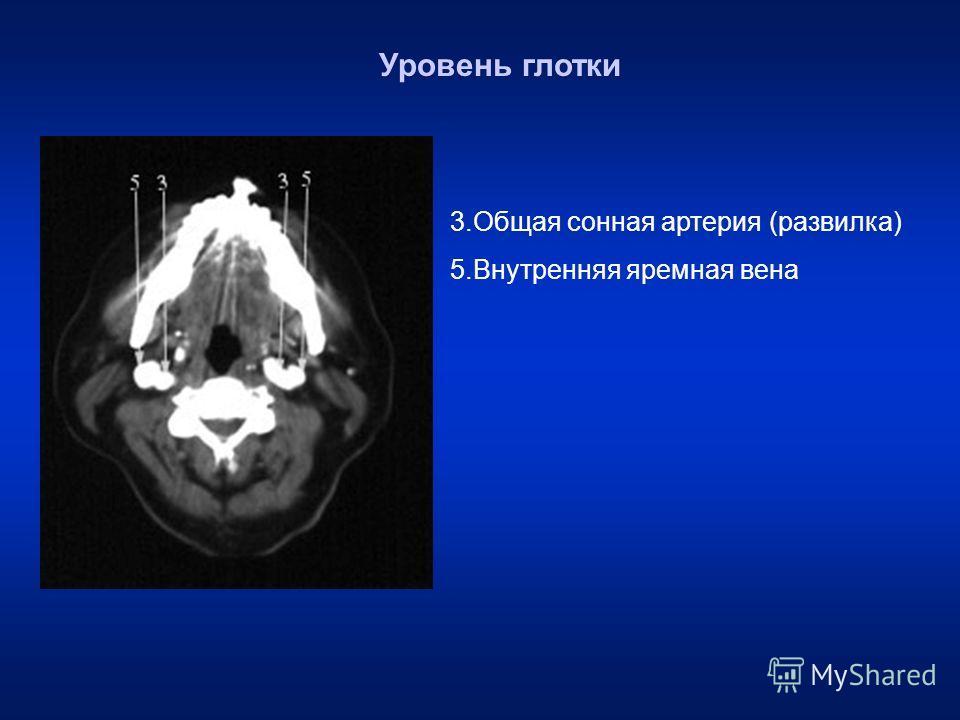 3. Общая сонная артерия (развилка) 5. Внутренняя яремная вена Уровень глотки