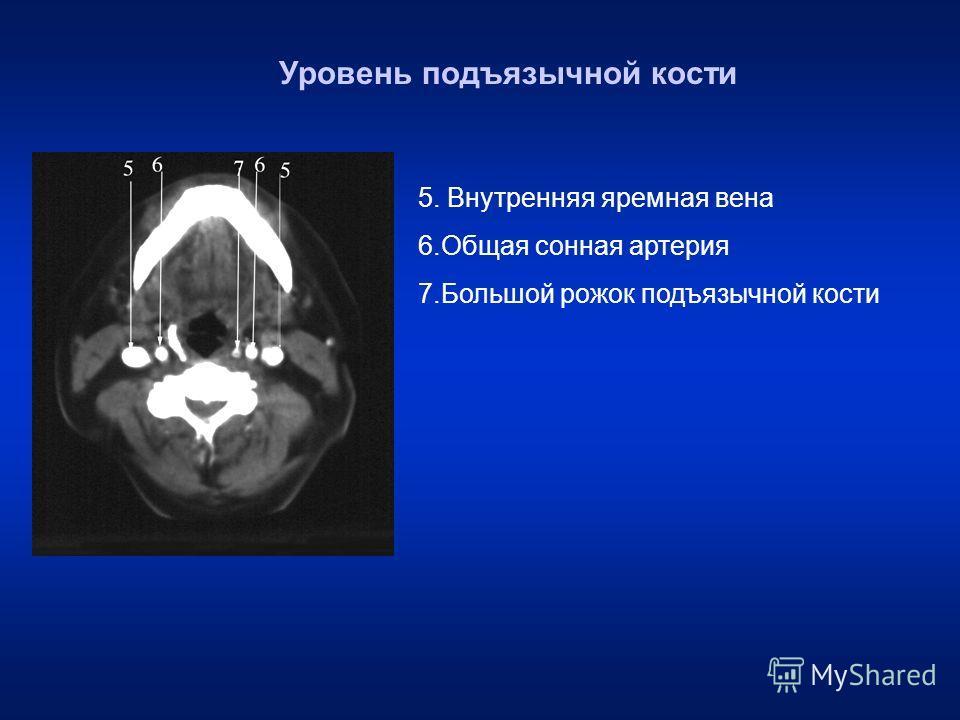 5. Внутренняя яремная вена 6. Общая сонная артерия 7. Большой рожок подъязычной кости Уровень подъязычной кости