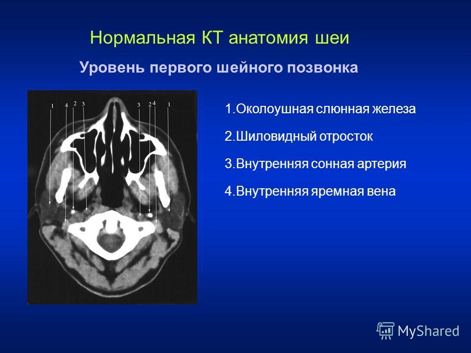 Нормальная КТ анатомия шеи Уровень первого шейного позвонка 1. Околоушная слюнная железа 2. Шиловидный отросток 3. Внутренняя сонная артерия 4. Внутренняя яремная вена