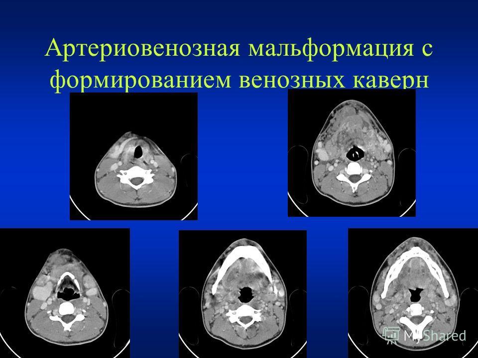 Артериовенозная мальформация с формированием венозных каверн
