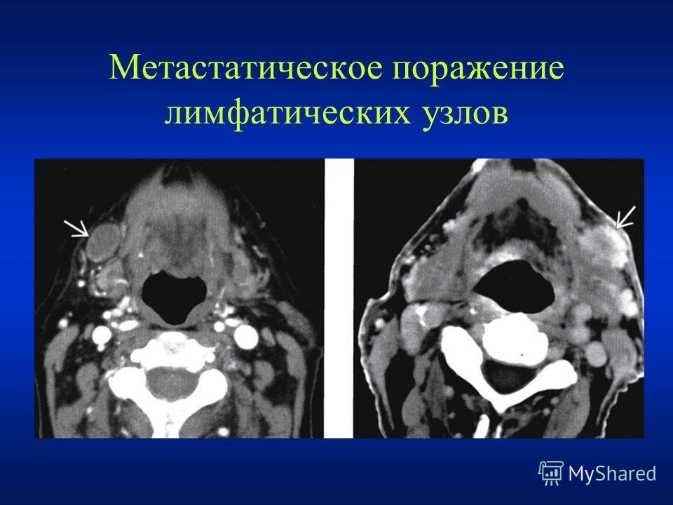 Метастатическое поражение лимфатических узлов