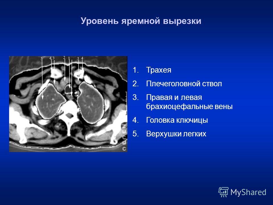Уровень яремной вырезки 1. Трахея 2. Плечеголовной ствол 3. Правая и левая брахиоцефальные вены 4. Головка ключицы 5. Верхушки легких