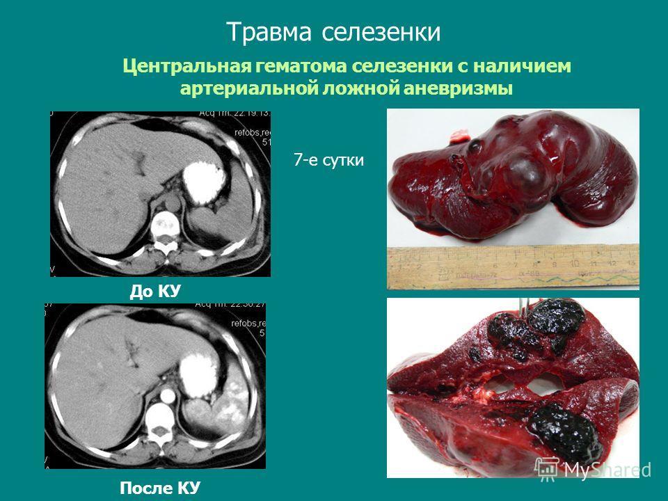 Травма селезенки Центральная гематома селезенки с наличием артериальной ложной аневризмы До КУ После КУ 7-е сутки