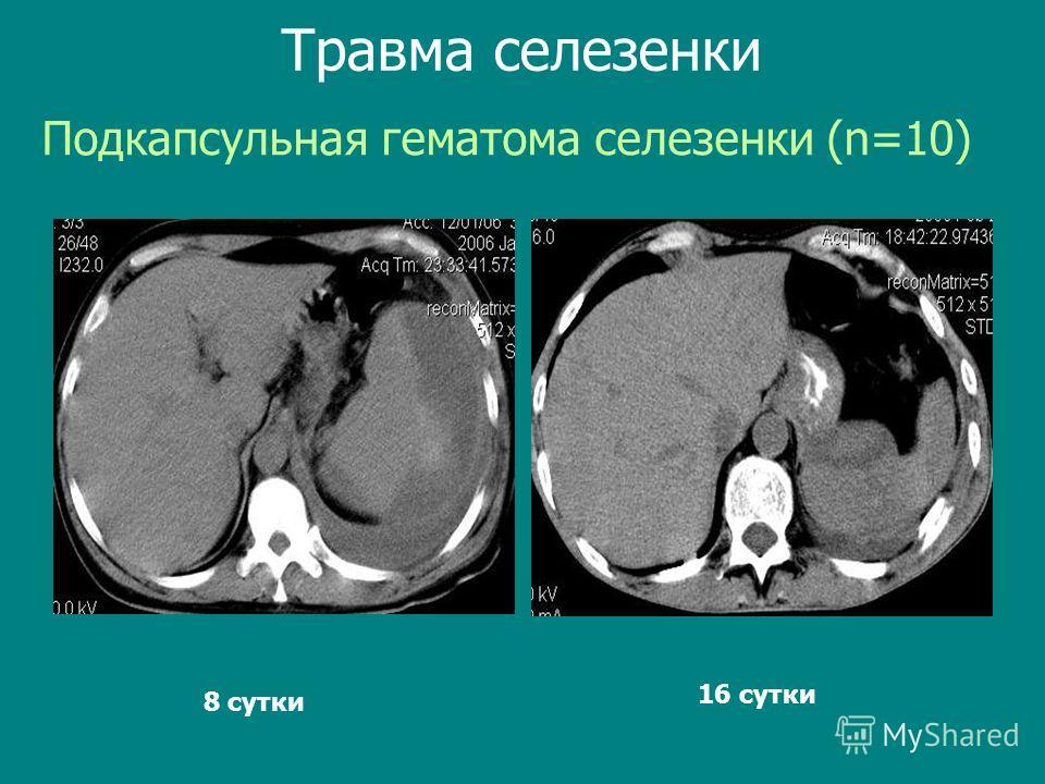 Подкапсульная гематома селезенки (n=10) Травма селезенки 8 сутки 16 сутки