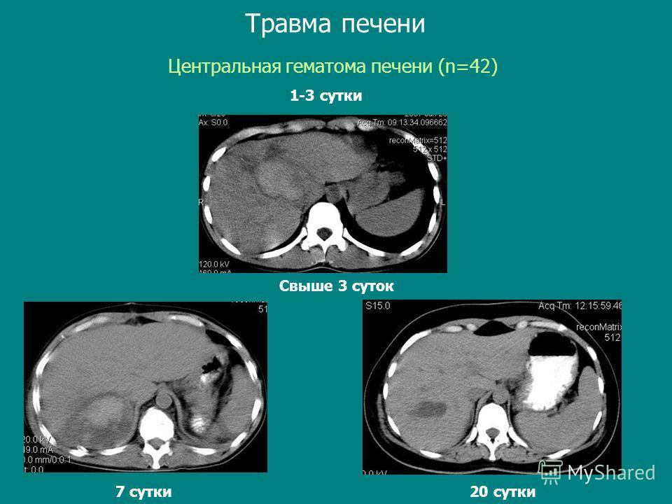 Свыше 3 суток Центральная гематома печени (n=42) Травма печени 1-3 сутки Свыше 3 суток 20 сутки 7 сутки