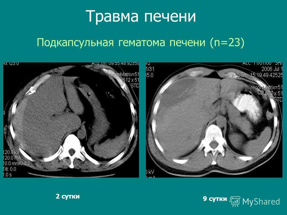 Подкапсульная гематома печени (n=23) Травма печени 9 сутки 2 сутки