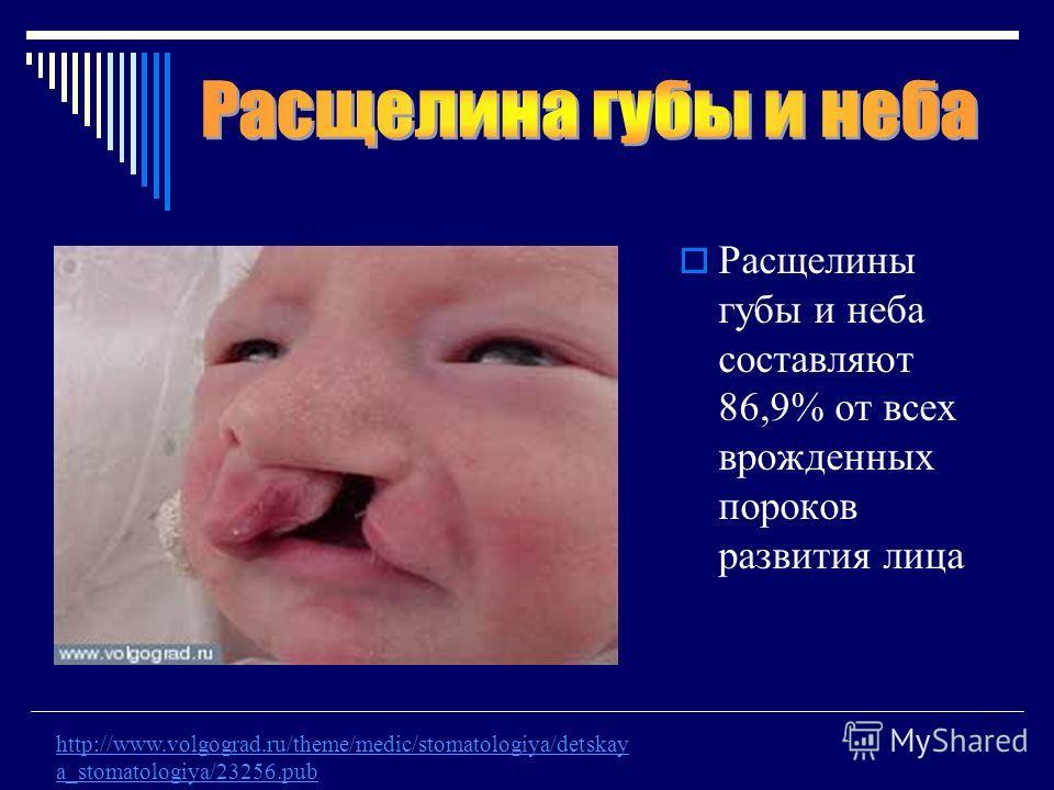 Расщелины губы и неба составляют 86,9% от всех врожденных пороков развития лица http://www.volgograd.ru/theme/medic/stomatologiya/detskay a_stomatologiya/23256.pub