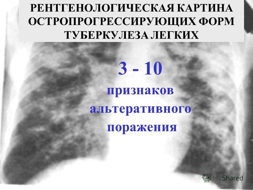 3 - 10 признаков альтеративного поражения РЕНТГЕНОЛОГИЧЕСКАЯ КАРТИНА ОСТРОПРОГРЕССИРУЮЩИХ ФОРМ ТУБЕРКУЛЕЗА ЛЕГКИХ