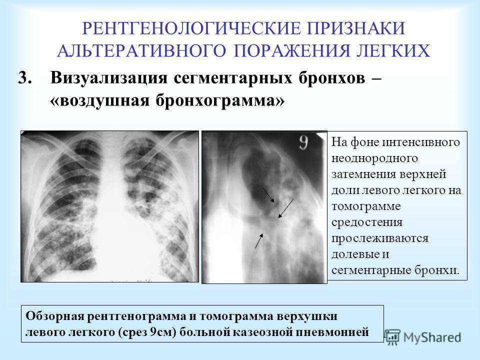 РЕНТГЕНОЛОГИЧЕСКИЕ ПРИЗНАКИ АЛЬТЕРАТИВНОГО ПОРАЖЕНИЯ ЛЕГКИХ 3. Визуализация сегментарных бронхов – «воздушная бронхограмма» Обзорная рентгенограмма и томограмма верхушки левого легкого (срез 9 см) больной казеозной пневмонией На фоне интенсивного нео