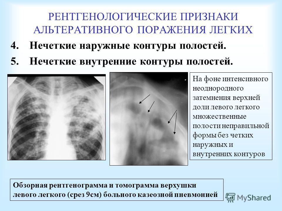 РЕНТГЕНОЛОГИЧЕСКИЕ ПРИЗНАКИ АЛЬТЕРАТИВНОГО ПОРАЖЕНИЯ ЛЕГКИХ 4. Нечеткие наружные контуры полостей. 5. Нечеткие внутренние контуры полостей. Обзорная рентгенограмма и томограмма верхушки левого легкого (срез 9 см) больного казеозной пневмонией На фоне