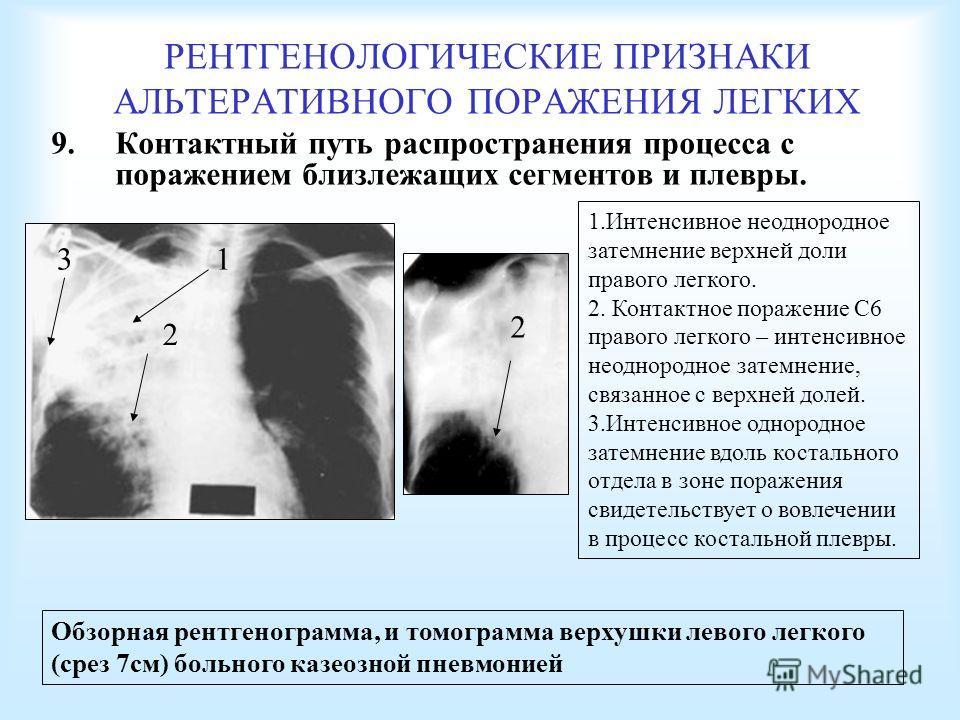 РЕНТГЕНОЛОГИЧЕСКИЕ ПРИЗНАКИ АЛЬТЕРАТИВНОГО ПОРАЖЕНИЯ ЛЕГКИХ 9. Контактный путь распространения процесса с поражением близлежащих сегментов и плевры. Обзорная рентгенограмма, и томограмма верхушки левого легкого (срез 7 см) больного казеозной пневмони