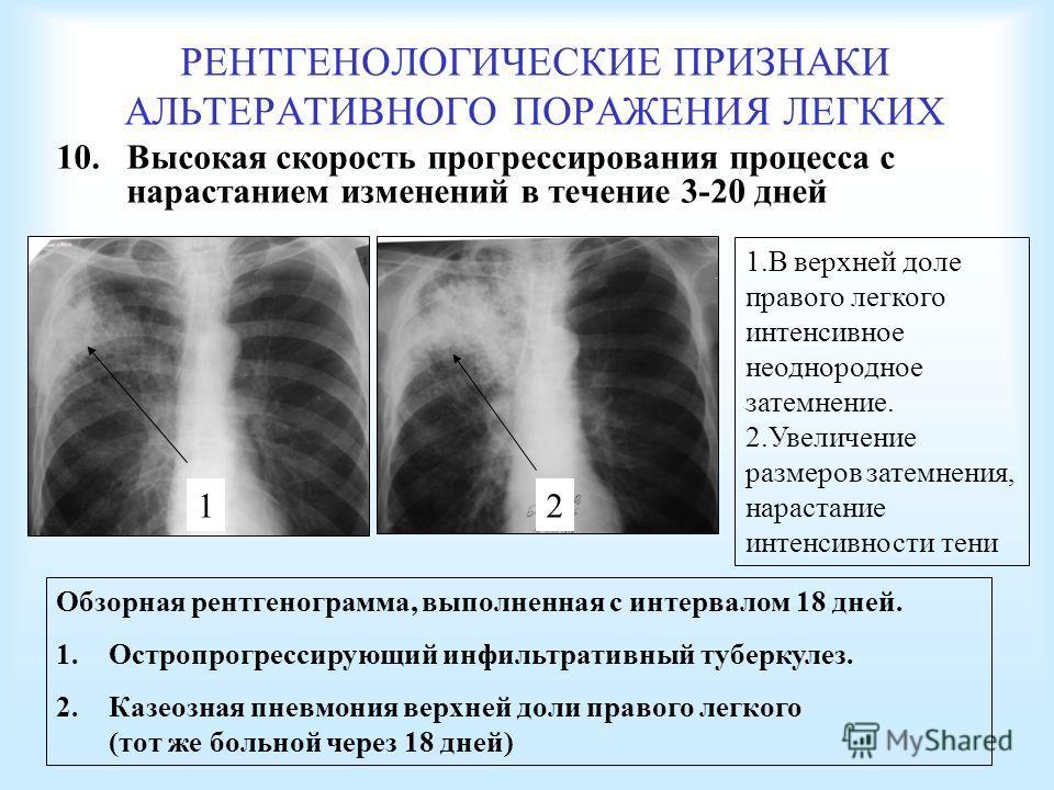 РЕНТГЕНОЛОГИЧЕСКИЕ ПРИЗНАКИ АЛЬТЕРАТИВНОГО ПОРАЖЕНИЯ ЛЕГКИХ 10. Высокая скорость прогрессирования процесса с нарастанием изменений в течение 3-20 дней Обзорная рентгенограмма, выполненная с интервалом 18 дней. 1. Остропрогрессирующий инфильтративный