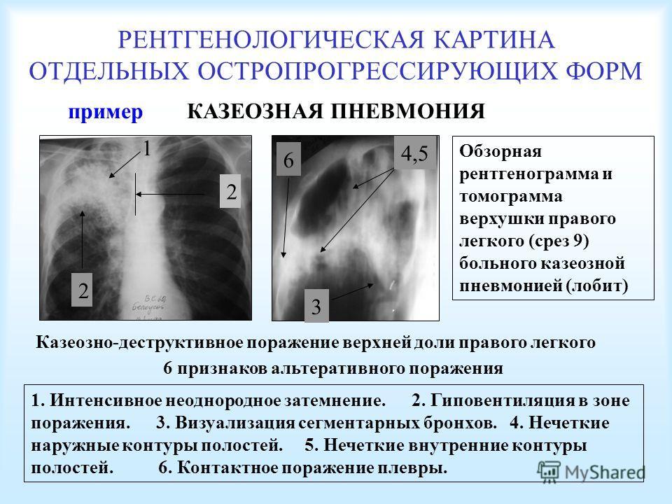 РЕНТГЕНОЛОГИЧЕСКАЯ КАРТИНА ОТДЕЛЬНЫХ ОСТРОПРОГРЕССИРУЮЩИХ ФОРМ КАЗЕОЗНАЯ ПНЕВМОНИЯ Обзорная рентгенограмма и томограмма верхушки правого легкого (срез 9) больного казеозной пневмонией (лобит) Казеозно-деструктивное поражение верхней доли правого легк