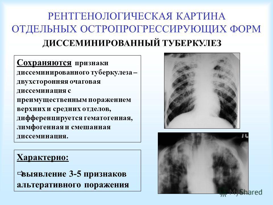 РЕНТГЕНОЛОГИЧЕСКАЯ КАРТИНА ОТДЕЛЬНЫХ ОСТРОПРОГРЕССИРУЮЩИХ ФОРМ ДИССЕМИНИРОВАННЫЙ ТУБЕРКУЛЕЗ Сохраняются признаки диссеминированного туберкулеза – двухсторонняя очаговая диссеминация с преимущественным поражением верхних и средних отделов, дифференцир