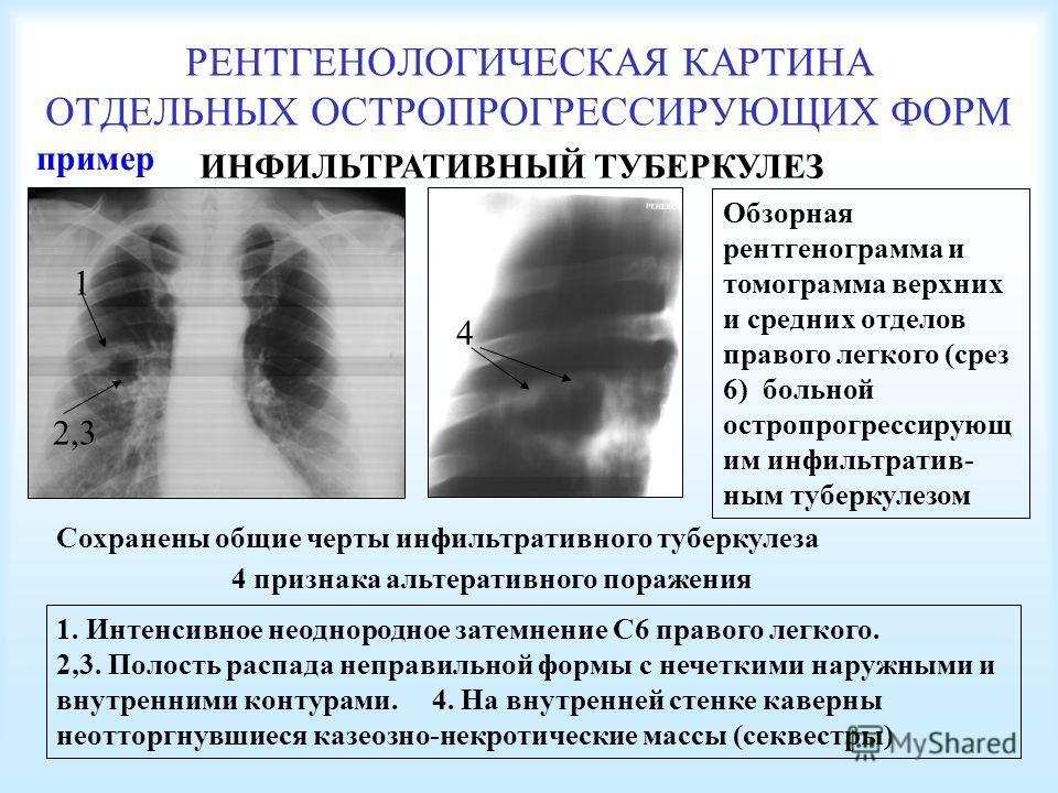 РЕНТГЕНОЛОГИЧЕСКАЯ КАРТИНА ОТДЕЛЬНЫХ ОСТРОПРОГРЕССИРУЮЩИХ ФОРМ ИНФИЛЬТРАТИВНЫЙ ТУБЕРКУЛЕЗ Обзорная рентгенограмма и томограмма верхних и средних отделов правого легкого (срез 6) больной остропрогрессирующ им инфильтратив- ным туберкулезом 4 признака