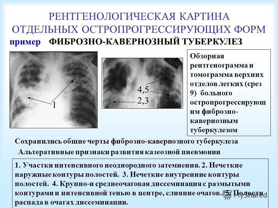РЕНТГЕНОЛОГИЧЕСКАЯ КАРТИНА ОТДЕЛЬНЫХ ОСТРОПРОГРЕССИРУЮЩИХ ФОРМ ФИБРОЗНО-КАВЕРНОЗНЫЙ ТУБЕРКУЛЕЗ Обзорная рентгенограмма и томограмма верхних отделов легких (срез 9) больного остропрогрессирующ им фиброзно- кавернозным туберкулезом Альтеративные призна