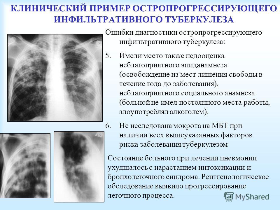 КЛИНИЧЕСКИЙ ПРИМЕР ОСТРОПРОГРЕССИРУЮЩЕГО ИНФИЛЬТРАТИВНОГО ТУБЕРКУЛЕЗА Состояние больного при лечении пневмонии ухудшалось с нарастанием интоксикации и бронхолегочного синдрома. Рентгенологическое обследование выявило прогрессирование легочного процес