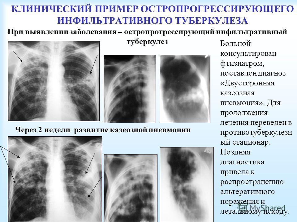 КЛИНИЧЕСКИЙ ПРИМЕР ОСТРОПРОГРЕССИРУЮЩЕГО ИНФИЛЬТРАТИВНОГО ТУБЕРКУЛЕЗА Больной консультирован фтизиатром, поставлен диагноз «Двусторонняя казеозная пневмония». Для продолжения лечения переведен в противотуберкулезн ый стационар. Поздняя диагностика пр