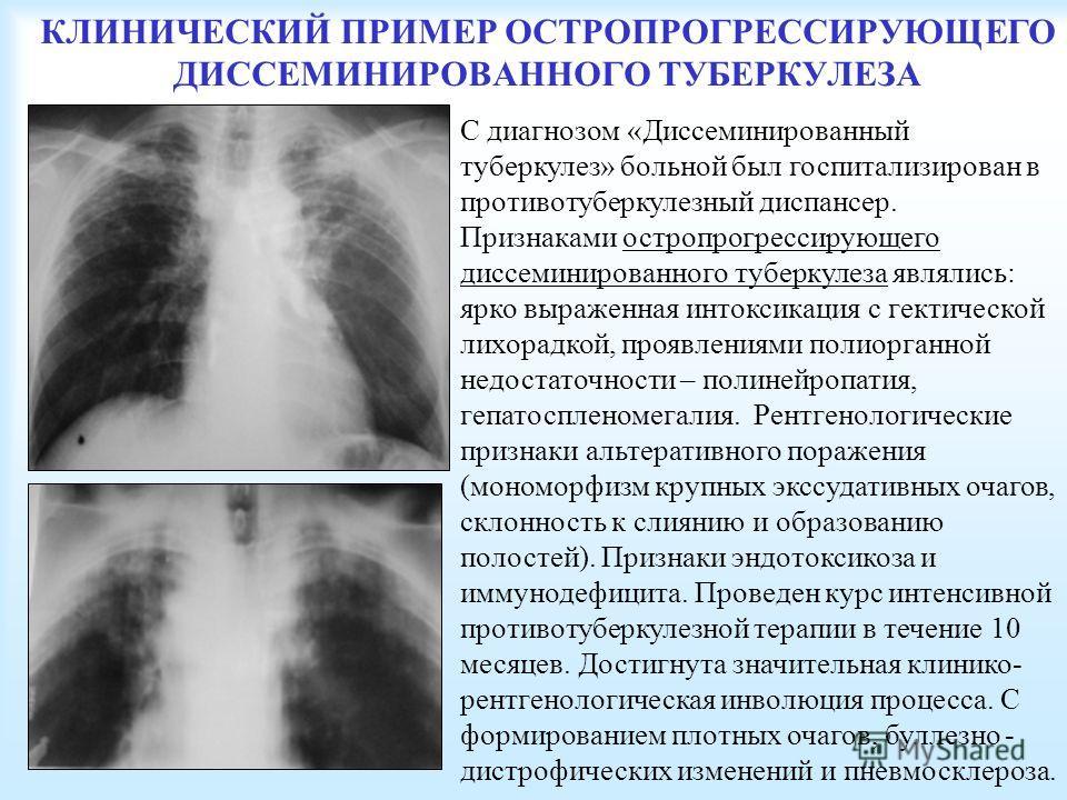 КЛИНИЧЕСКИЙ ПРИМЕР ОСТРОПРОГРЕССИРУЮЩЕГО ДИССЕМИНИРОВАННОГО ТУБЕРКУЛЕЗА С диагнозом «Диссеминированный туберкулез» больной был госпитализирован в противотуберкулезный диспансер. Признаками остро прогрессирующего диссеминированного туберкулеза являлис