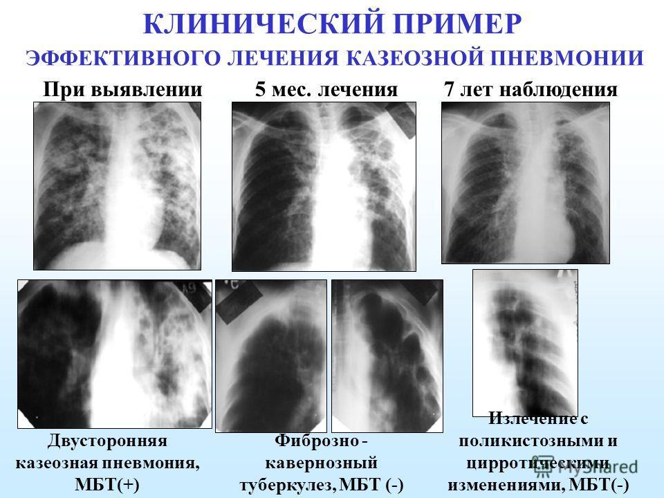 КЛИНИЧЕСКИЙ ПРИМЕР ЭФФЕКТИВНОГО ЛЕЧЕНИЯ КАЗЕОЗНОЙ ПНЕВМОНИИ При выявлении 5 мес. лечения 7 лет наблюдения Двусторонняя казеозная пневмония, МБТ(+) Фиброзно - кавернозный туберкулез, МБТ (-) Излечение с поликистозными и цирротическими изменениями, МБТ