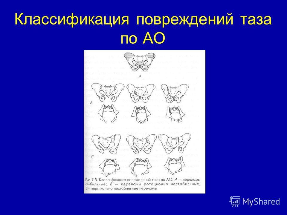 Классификация повреждений таза по АО