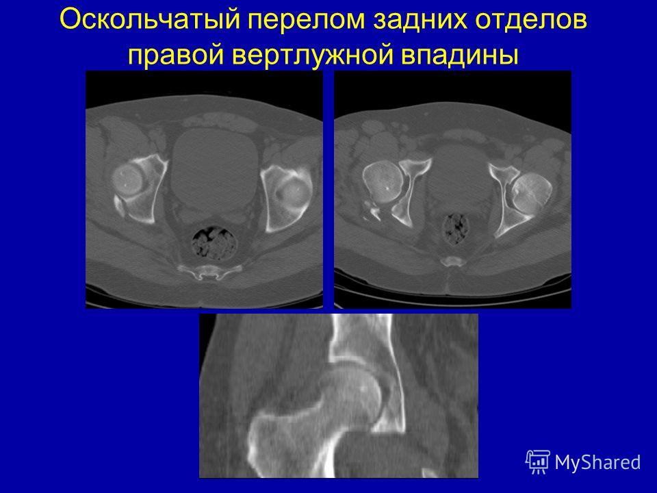 Оскольчатый перелом задних отделов правой вертлужной впадины